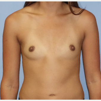 25-34 year old woman treated with Breast Augmentation before 3105189