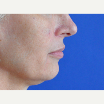 45-54 year old woman treated with Lip Augmentation after 3240197
