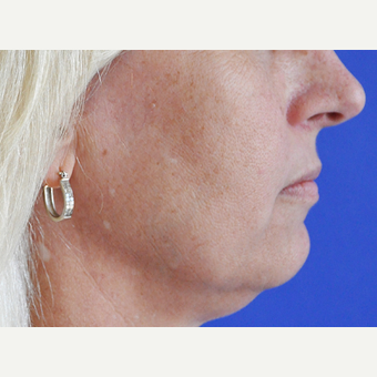 45-54 year old woman treated with Lip Augmentation before 3240197