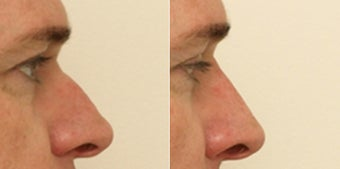 Male Non-surgical Rhinoplasty before 1181357