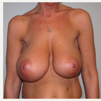 45-54 year old woman treated with Breast Reduction before 3663508