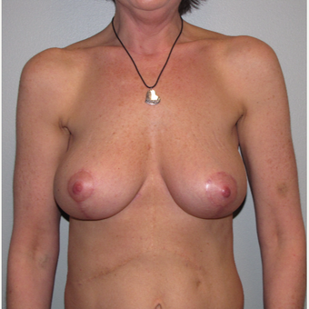 45-54 year old woman treated with Breast Reduction after 3663508