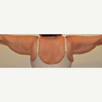 55-64 year old woman treated with Arm Lift before 3659466