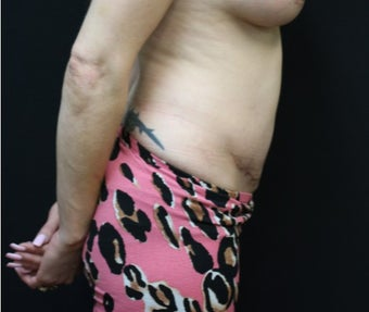 37 year old woman treated with Liposuction after 3076601