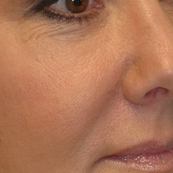 50 year old woman treated with Voluma to the midface before 3543436