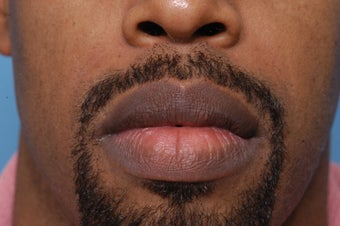 35 Year Old Male Treated for Large Lips before 1326065