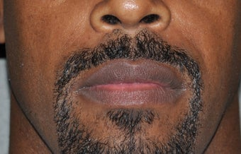 35 Year Old Male Treated for Large Lips after 1326065