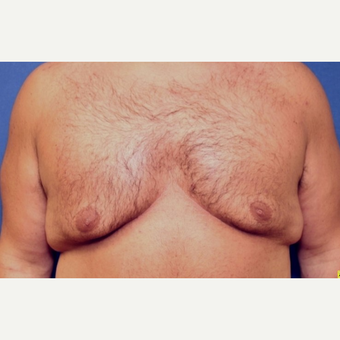 37 year old man with a Male Breast Reduction with full-thickness skin graft in nipple/areola before 3522507