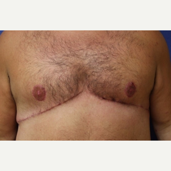 37 year old man with a Male Breast Reduction with full-thickness skin graft in nipple/areola after 3522507