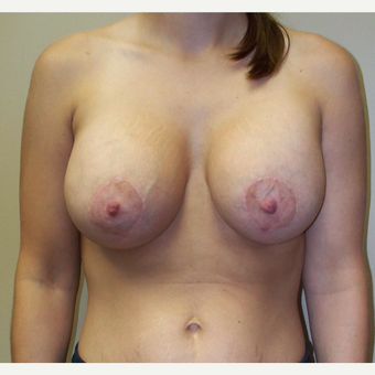 25-34 year old woman treated with Breast Lift with Implants after 3542783