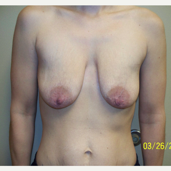 25-34 year old woman treated with Breast Lift with Implants before 3542783