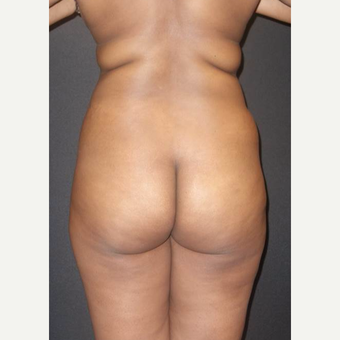 35-44 year old woman treated with Brazilian Butt Lift before 3014049