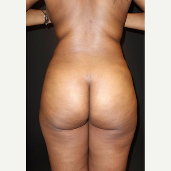 35-44 year old woman treated with Brazilian Butt Lift after 3014049