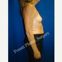 55-64 year old woman treated with Breast Augmentation 1908019