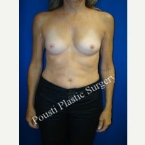 55-64 year old woman treated with Breast Augmentation before 1908019