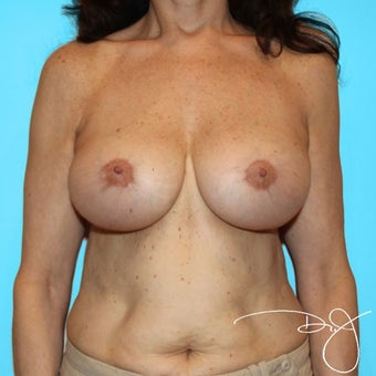 55-64 year old woman treated with Breast Augmentation