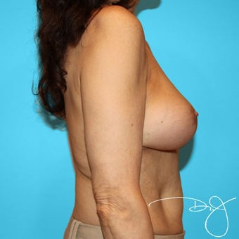 55-64 year old woman treated with Breast Augmentation 1965574
