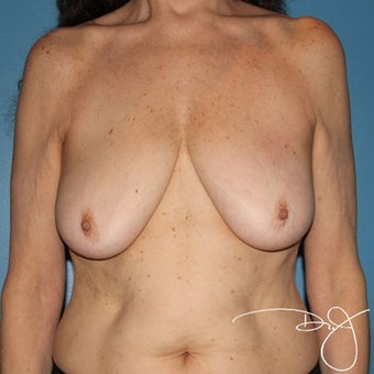55-64 year old woman treated with Breast Augmentation before 1965574