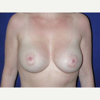 35-44 year old woman treated with Breast Implants after 3727054