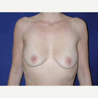 35-44 year old woman treated with Breast Implants before 3727054