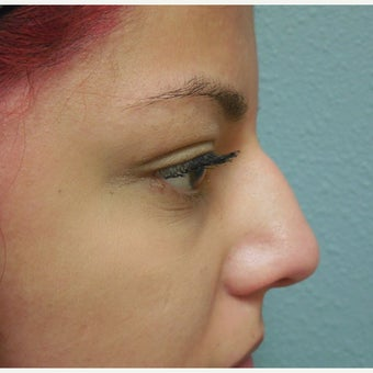 18-24 year old woman treated with Nose Surgery before 1938261