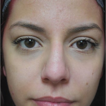 18-24 year old woman treated with Nose Surgery 1938261