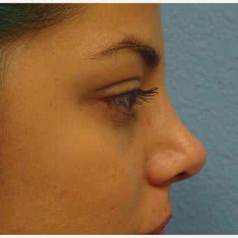 18-24 year old woman treated with Nose Surgery after 1938261