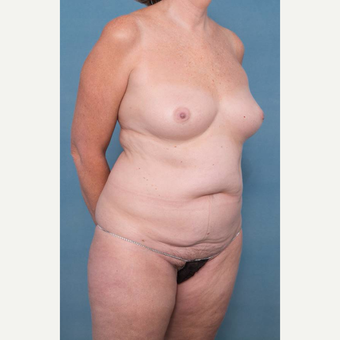 55-64 year old woman treated with Mommy Makeover before 3137343