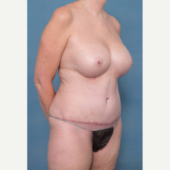 55-64 year old woman treated with Mommy Makeover after 3137343