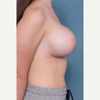 18-24 year old woman treated with Breast Augmentation after 3062119