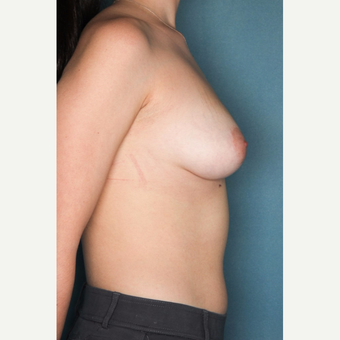 18-24 year old woman treated with Breast Augmentation before 3062119