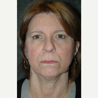 63 year old woman treated with Facelift before 3710750