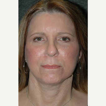 63 year old woman treated with Facelift after 3710750