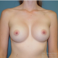 25-34 year old woman treated with Breast Augmentation after 1708088