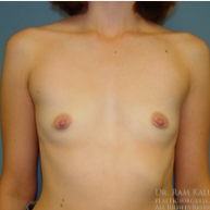 25-34 year old woman treated with Breast Augmentation before 1708088