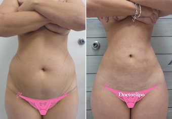 35-44 year old woman treated with Laser Liposuction before 3810569