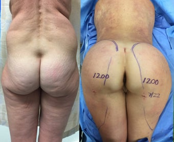 63 year old woman treated with Brazilian Butt Lift before 3162451
