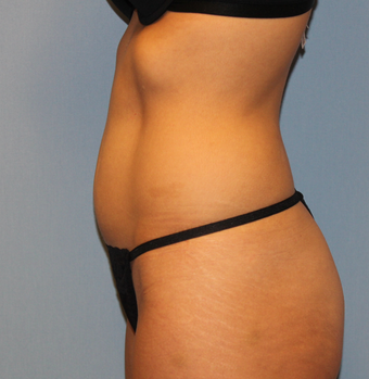 39 year old with effect of pregnancy treated with miniabdominoplasty and liposuction 1327709