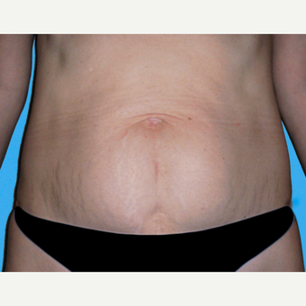 Tummy Tuck before 3813506