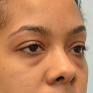 Transconjunctival Blepharoplasty to treat eye bags of 24 year old woman before 2596249