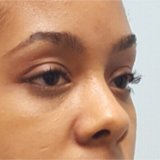 Transconjunctival Blepharoplasty to treat eye bags of 24 year old woman after 2596249