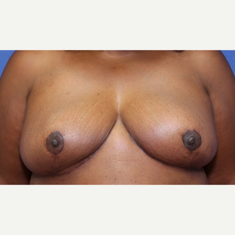 24 year old woman with a bilateral Breast Reduction after 3523229