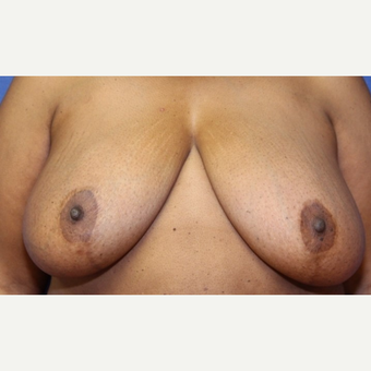 24 year old woman with a bilateral Breast Reduction before 3523229