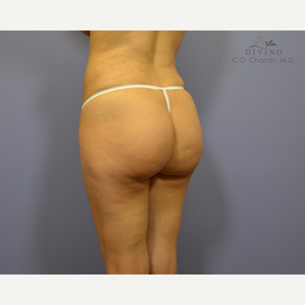 25-34 year old woman treated with Butt Implants before 3391388