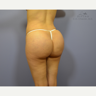 25-34 year old woman treated with Butt Implants after 3391388