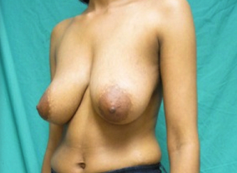 Mastopexy or Breast Lift (No Implant used) 1198520