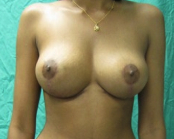Mastopexy or Breast Lift (No Implant used) after 1198520