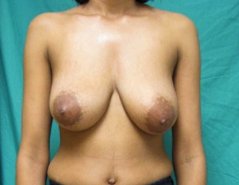 Mastopexy or Breast Lift (No Implant used) before 1198520