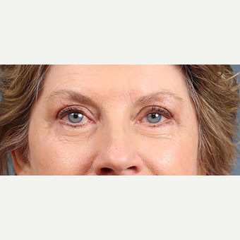 Eyelid Surgery after 3123720