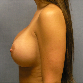 25-34 year old woman treated with Breast Implant Revision before 3635645
